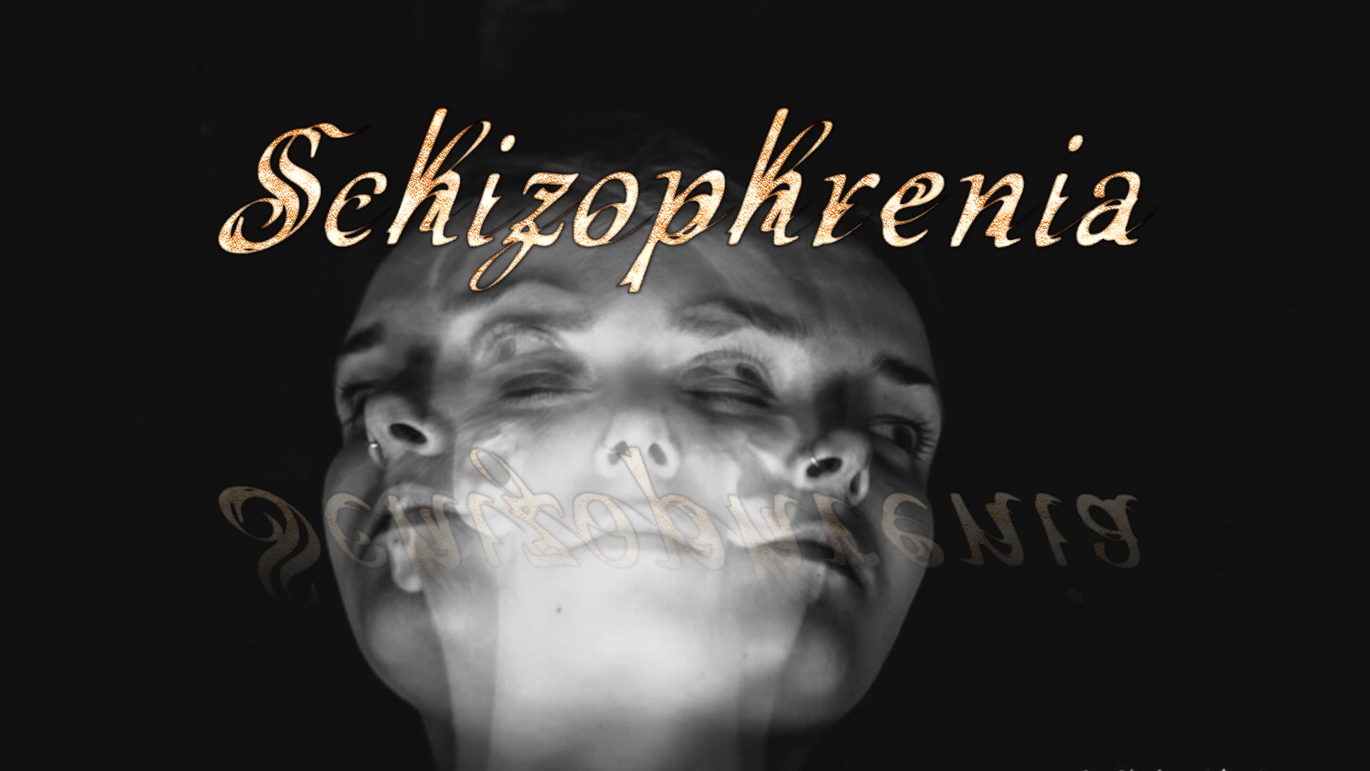 Şizofreni Hastalığı Hakkında Bilgiler